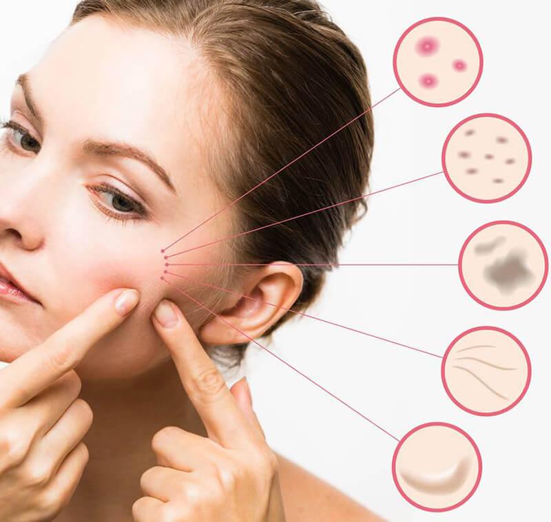 3.Terapie intensiva pentru tenul gras si acneic – Oil Control – Kit professional